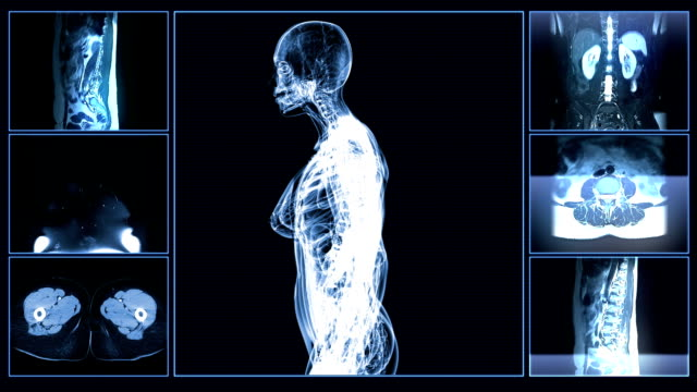 Female Body MRI Scan video