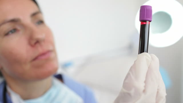 Female doctor looking at blood sample video