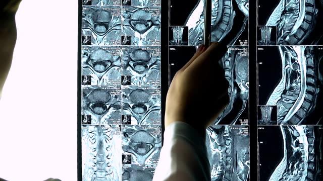 Femme médecin pointant vers la colonne vertébrale IRM du patient racontant la maladie aux stagiaires - Vidéo