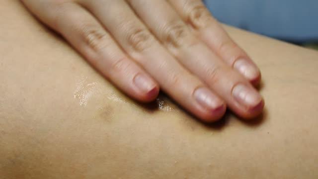 stockvideo's en b-roll-footage met de vrouwelijke hand wrijft zalfroom in bruise - lipbalsem