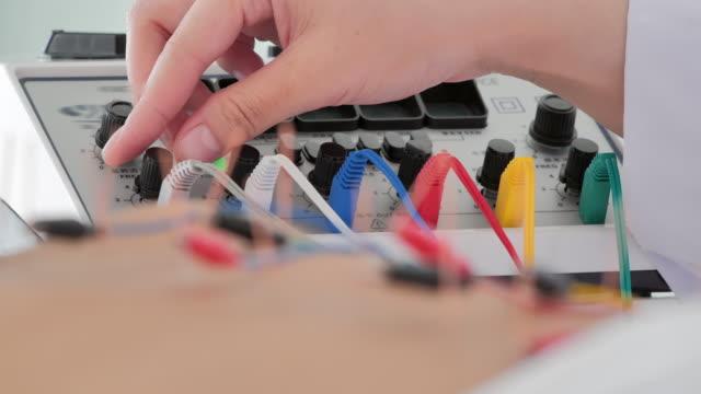 kvinnlig sjukgymnast gör akupunktur på baksidan med elektrisk stimulator på kliniken hos en kvinnlig patient. medicin, sjukvård och medicin, vetenskap, teknik, specialist, alternativ medicin - acupuncture bildbanksvideor och videomaterial från bakom kulisserna