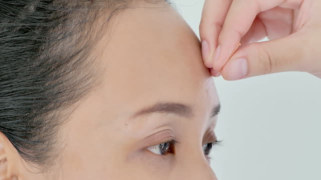 kvinnlig sjukgymnast gör akupunktur i pannan på en kvinnlig patient. medicin, vetenskap, teknik, specialist, utbildning, livsstil, alternativ medicin koncept. medicin, vetenskap, teknik, specialist, alternativ medicin - acupuncture bildbanksvideor och videomaterial från bakom kulisserna