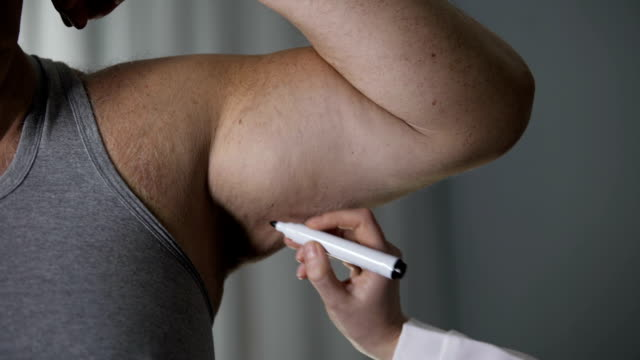 Female plastic surgeon marking line on obese male arm loose skin, healthcare video