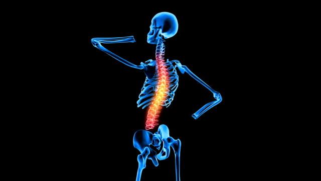 Female Skeleton Having Back Pain video