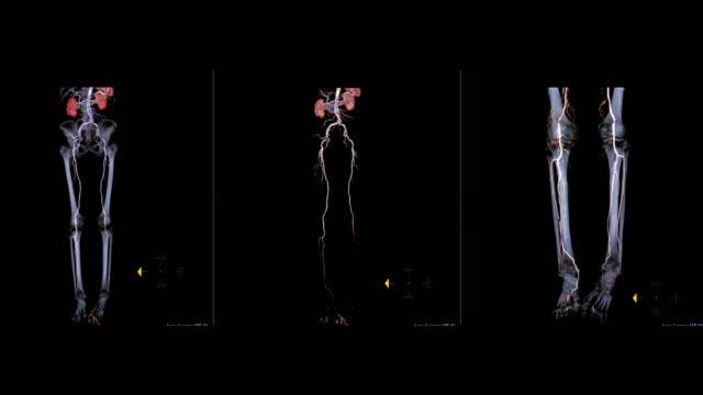 vídeos de stock e filmes b-roll de cta femoral artery run off  3d image turn around on the screen for diagnosis chronic peripheral arterial disease . - artéria