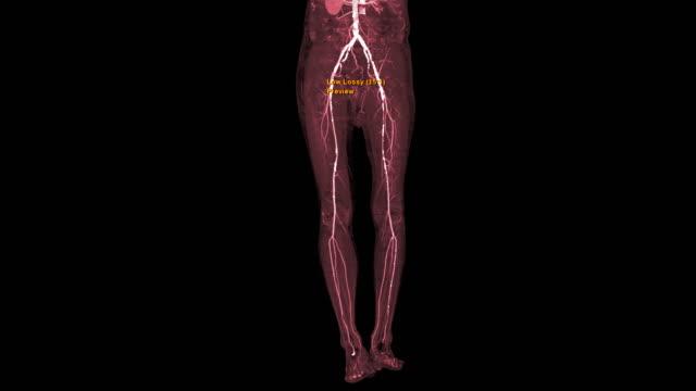 vídeos y material grabado en eventos de stock de cta arteria femoral correr fuera de vista 3d mip . - arteriograma