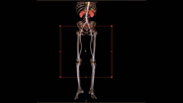 vídeos y material grabado en eventos de stock de la arteria femoral de cta ejecuta la imagen de renderizado 3d de la arteria femoral con riñón para los pacientes que presenten enfermedad arterial periférica aguda o crónica. - arteriograma