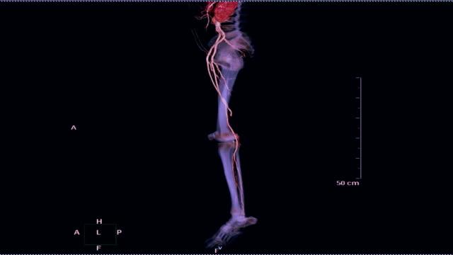 vídeos de stock e filmes b-roll de cta femoral artery run off 3d rendering image. - aorta