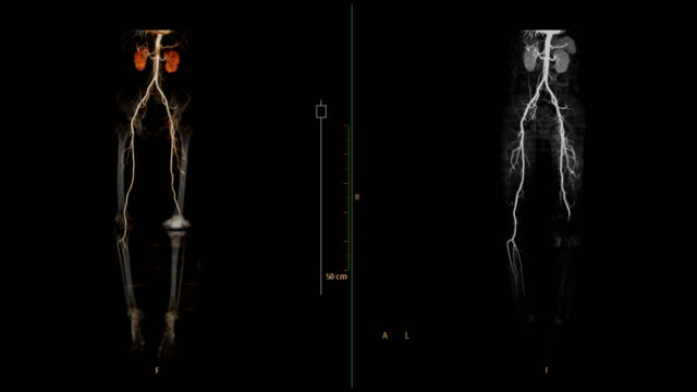 vídeos de stock e filmes b-roll de cta femoral artery run off 3d rendering image vs mip imaging showing  all vessel of lower extremity .ct angiography of femoral artery. - arteriograma