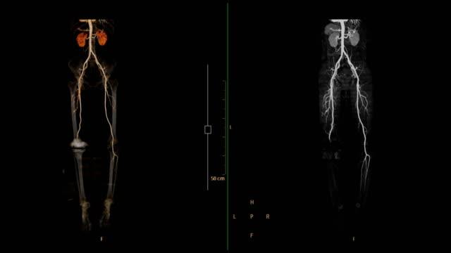 vídeos y material grabado en eventos de stock de la arteria femoral cta se deshace de imágenes de renderizado 3d frente a imágenes mip. - arteriograma