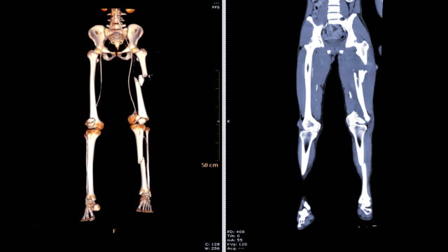 CTA femoral artery run off   3D  VS 2D CTA femoral artery run off   3D rendering image VS 2D coronal view  of lower Extremity in case trauma fracture femur bone. arteriogram stock videos & royalty-free footage