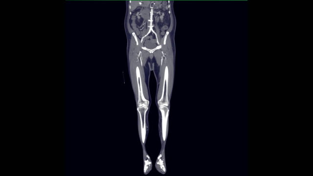 CTA femoral artery run off Coronal mip view. CTA femoral artery run off Coronal mip view. arteriogram stock videos & royalty-free footage