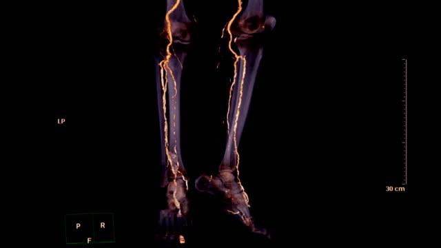vídeos de stock e filmes b-roll de cta femoral artery run off demonstrated calcified plaques and deep vein thrombosis. - veia