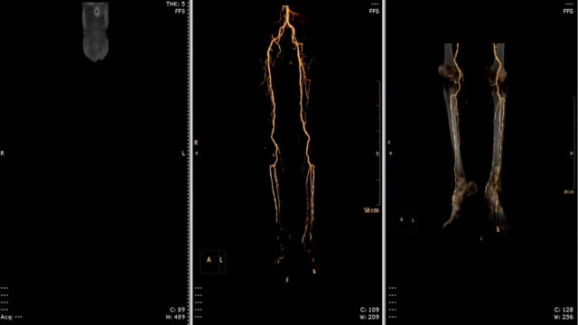 vídeos y material grabado en eventos de stock de arteria femoral cta escurr - arteriograma