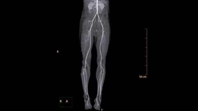 vídeos y material grabado en eventos de stock de la arteria femoral de la cta corre. - arteriograma