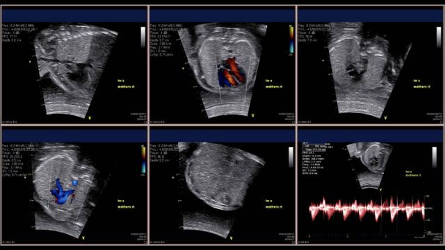 胎児心エコー検査 - 心臓点の映像素材/bロール