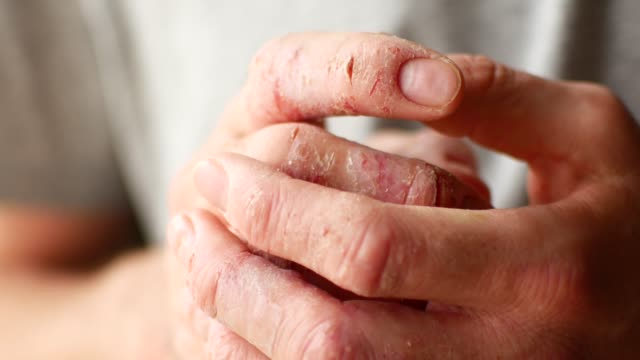 Fingers of a man with psoriasis and eczema. A close-up of the skin peeling
