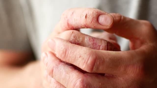 finger eines mannes mit psoriasis und ekzemen. eine nahaufnahme des hautpeelings - ausgedörrt stock-videos und b-roll-filmmaterial