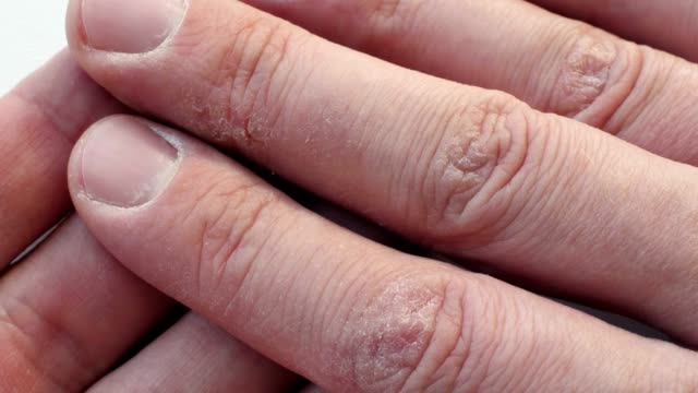 fingers with dry cracked skin. hands with dermatology problems. - pelle video stock e b–roll