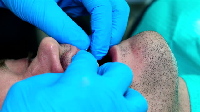 Fixation Of Dental Implant video