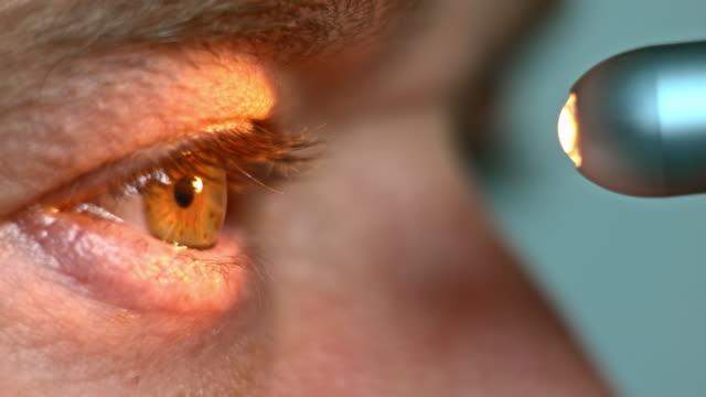 ecu ficklampa test som görs på ögat - optiska instrument bildbanksvideor och videomaterial från bakom kulisserna