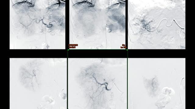vídeos y material grabado en eventos de stock de imagen fluoroscópica de la angioplastia hepática del hígado en la multipantalla en sala de radiología de intervención. - arteriograma