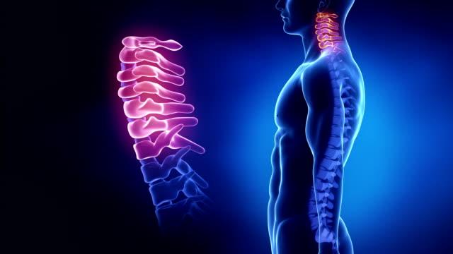vídeos y material grabado en eventos de stock de centrado en la columna cervical región en bucle - columna vertebral humana