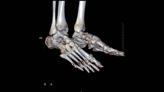 CT Foot or Scan of both foot 3D rendering image rotating on the screen showing fracture of distal tibia bone. CT Foot or Scan of both foot 3D rendering image rotating on the screen showing fracture of distal tibia bone. ankle stock videos & royalty-free footage