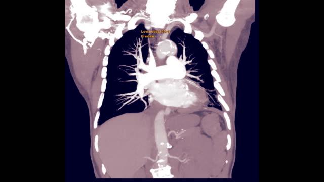 vídeos de stock e filmes b-roll de cta for pe or pulmonary embolism - arteriograma