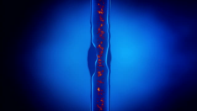 vídeos de stock e filmes b-roll de formação de placa na parede arterial - artéria