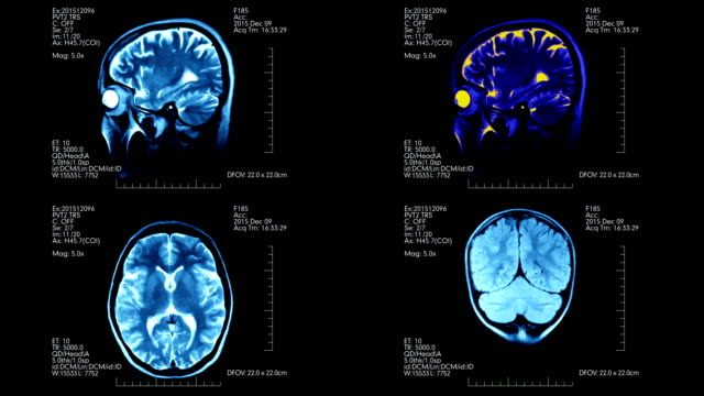 Four different pictures of MRI brain scan on one futuristic display with detailed medical data video