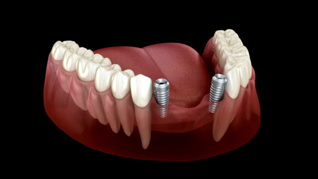 Frontal teeth bridge supported by implants. Medically accurate 3D animation of dental concept Frontal teeth bridge supported by implants. Medically accurate 3D animation of dental concept implant stock videos & royalty-free footage