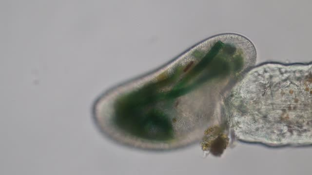 vídeos de stock e filmes b-roll de frontonia sp. is a genus of free-living unicellular ciliate protists under the microscope. - amiba
