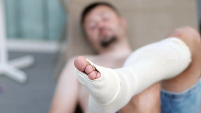 A frustrated man with a beard lies with a bandaged leg. A frustrated man with a beard lies with a bandaged leg. Injury. ankle stock videos & royalty-free footage