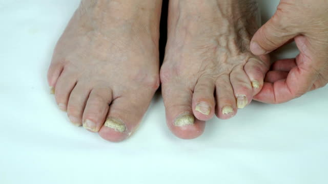 Fungal infection on nails of foot video