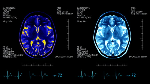 Futuristic medical display with animated mri brain scan and medical data on it video
