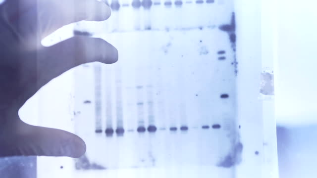 DNA genetic analysis results