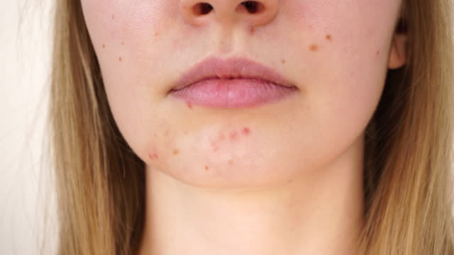 Girl showing her face with acne