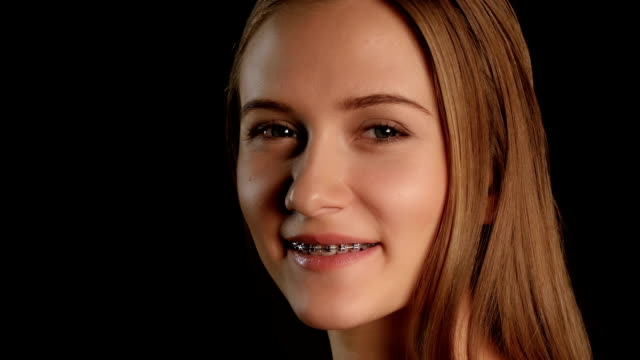 Girl with braces and blue eyes. Black Girl with braces and blue eyes, female with braces on his teeth white laughing and showing a smile, beautiful girl with braces, smiling young girl with braces on teeth, blonde girl with braces, on black background bent stock videos & royalty-free footage