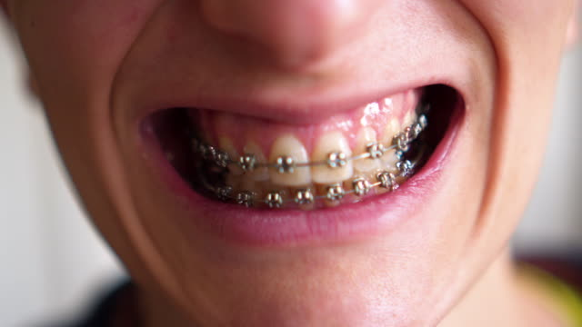 girl with retainer for teeth girl with retainer for teeth extreme close up stock videos & royalty-free footage