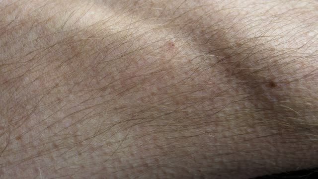 Goosebumps Appearing on Male Forearm Skin Fast Motion Close Up Goosebumps Appearing on Male Forearm Skin Fast Motion Close Up goosebumps stock videos & royalty-free footage