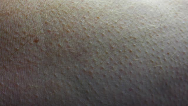 Goosebumps Appearing on Male Forearm Skin Fast Motion Close Up Goosebumps Appearing on Male Forearm Skin Fast Motion Close Up shivering stock videos & royalty-free footage