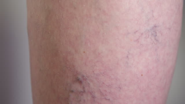 SLOW MOTION, MACRO: Grandmother's enlarged varicose veins running down her calf. video