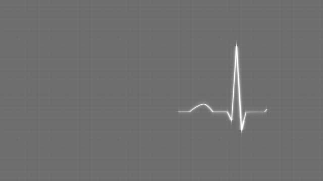 Gray HeartBeat Cardiogram on Grid Background. video
