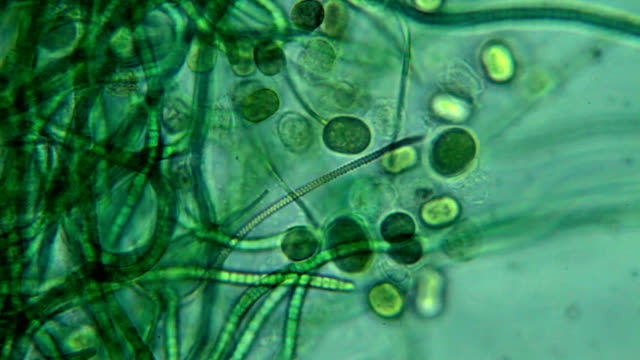 Algae - microscopic view video