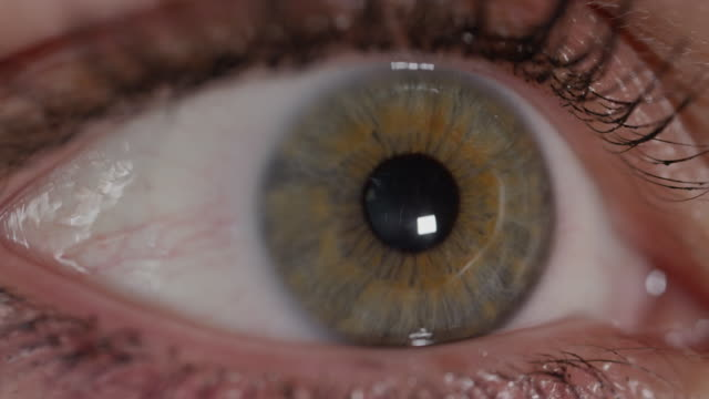SLOW MOTION MACRO: Green eye irritated by bright sunlight, pupil contracting. video
