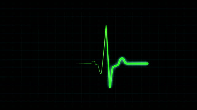 Green graph of heart rhythm on medical screen One heartbeat on monitor, seamlessly loop footage. Electrocardiogram green line medical grid screen. Bright green line shows heart rate in real-time. continuity stock videos & royalty-free footage