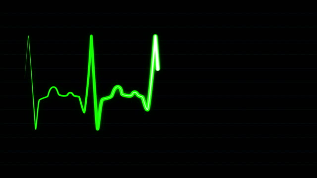 Green graph of heart rhythm on medical screen Green line with white core shows heart rate in real-time on electrocardiogram screen. EKG or ECG medical monitor of heart rate with grid lines, seamlessly loop footage. defibrillator stock videos & royalty-free footage
