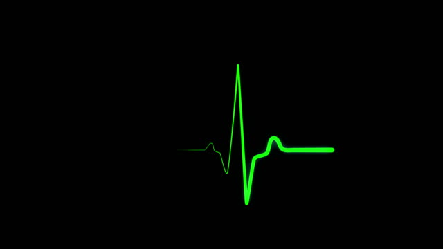 Green heartbeat line, ECG, EKG screen Cardiac monitoring screen. Restoring heart rate after cardiac arrest on medical monitor. Green line impulse of heart beating on black background. Electrocardiography. Seamlessly loop defibrillator stock videos & royalty-free footage