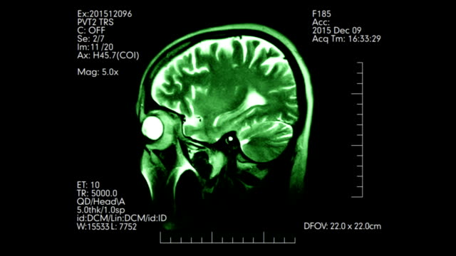 Green side view MRI brain scan display with dynamic medical data video